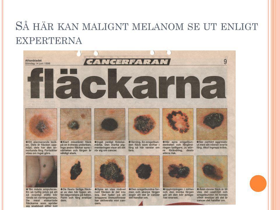 Copyright Hallberg Independent Research 2008 M ELANOM HAR ÖKAT SNABBAST PÅ DE SOLSKYDDADE DELARNA AV KROPPEN H ALLBERG Ö.
