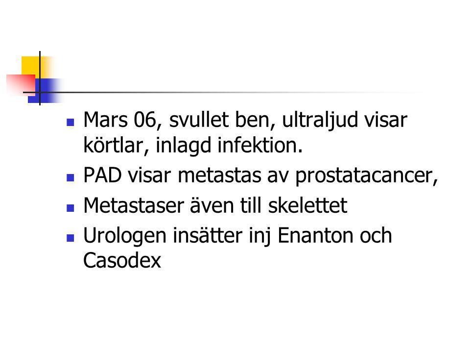 Mars 06, svullet ben, ultraljud visar körtlar, inlagd infektion. PAD visar metastas av prostatacancer, Metastaser även till skelettet Urologen insätte