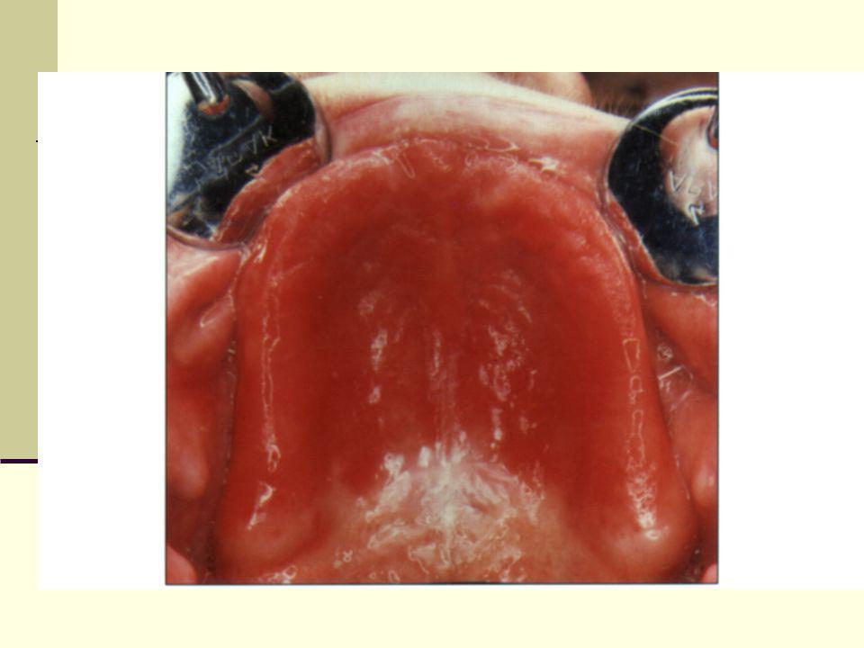 Ett dilemma för de äldre Tandvården tycks ha varit mer intresserad av att sätta in implantat än att sörja för god efterskötsel Efter 10 års bärande av käkbensförankrade implantat utan systematisk stödbehandling, var implantit ett vanligt kliniskt fynd ( Roos- Janåker A-M et al 2006) Med bristande ork och resurser avtar förmågan till självskötsel och risken för komplikationer ökar