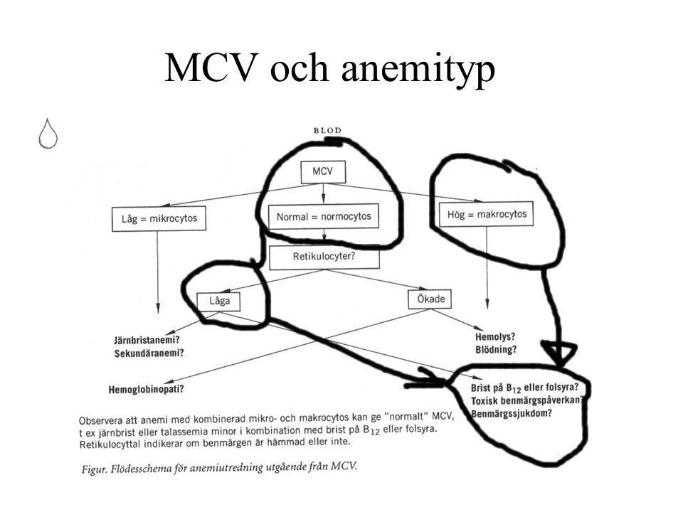Praktiska tips 1/3 av pat med B12-brist har normalt MCV, 1/3 ej anemi och 1/5 ej anemi/högt MCV 1/20 av pat.