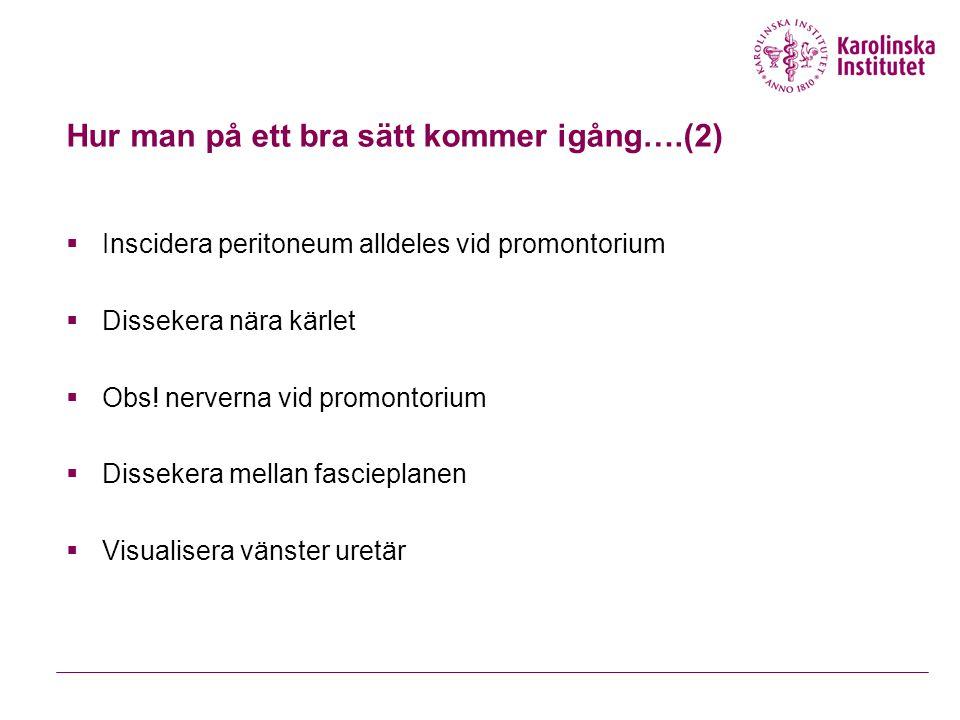Hur man på ett bra sätt kommer igång….(2)  Inscidera peritoneum alldeles vid promontorium  Dissekera nära kärlet  Obs.