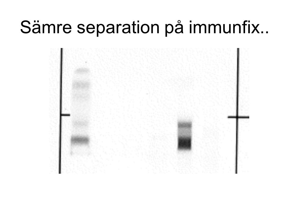 Sämre separation på immunfix..