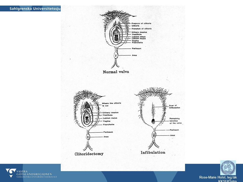 Sena komplikationer till kvinnlig könsstympning  Blåstömningsproblem med njursvikt på sikt  Infektioner som kan leda till infertilitet  Dysmenorré - hematokolpos  Retentioncystor  Abscess som kan ge fistelgångar – kloak  Förlossningshinder