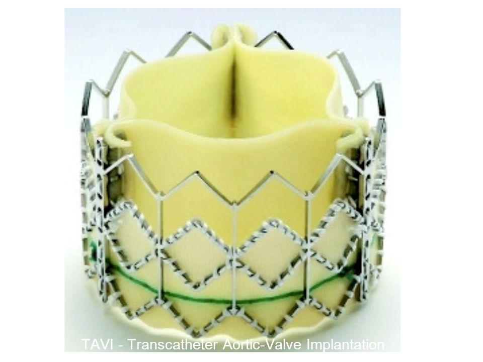 TAVI - Transcatheter Aortic-Valve Implantation