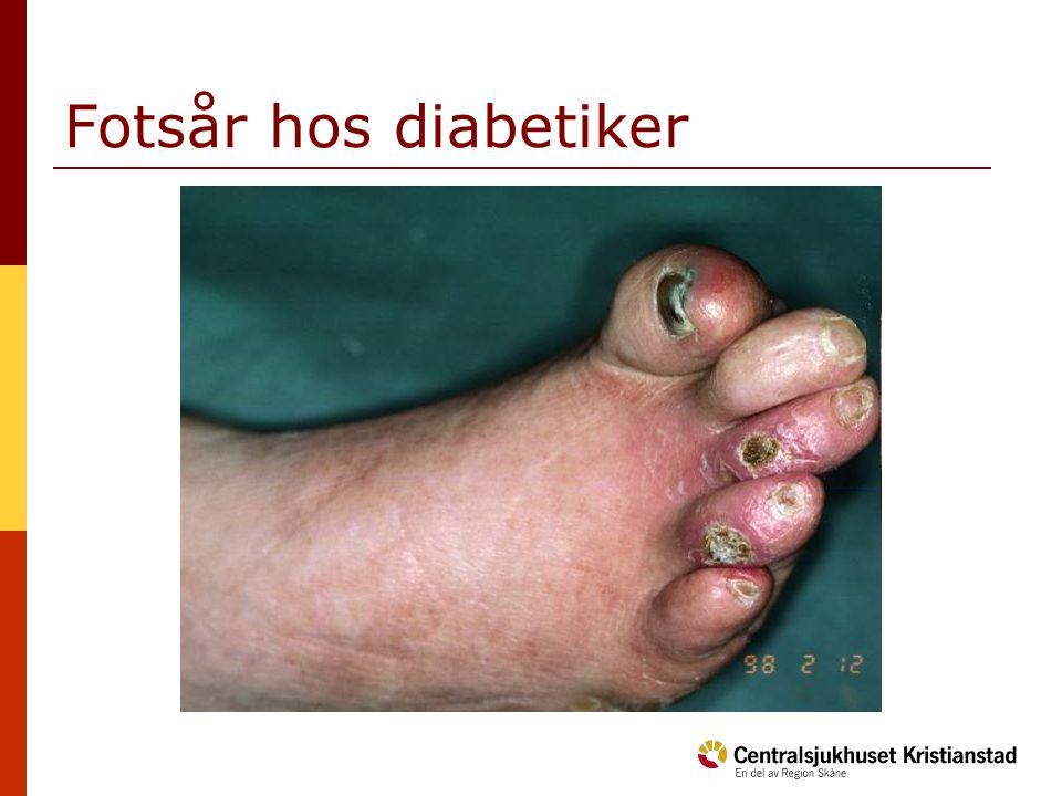 Fotsår hos diabetiker