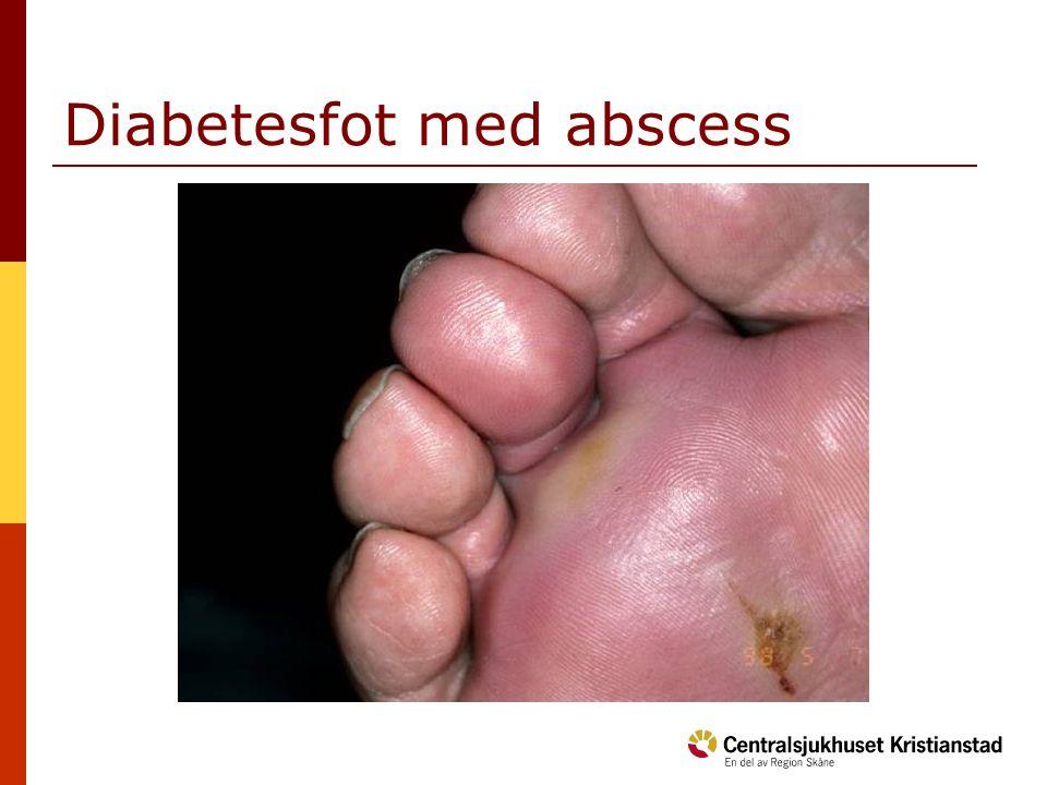 Diabetesfot med abscess