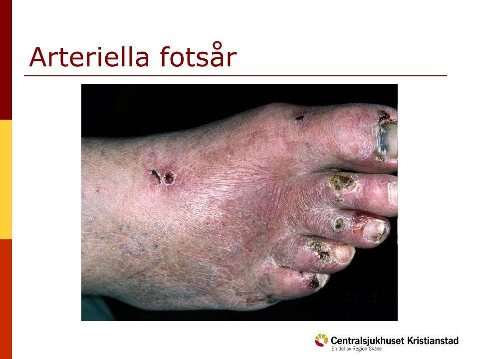 Arteriella bensår  Sår: Perifer lokalisation på tår, fotränder, hälar och ibland underben.