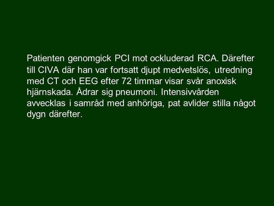 Patienten genomgick PCI mot ockluderad RCA.