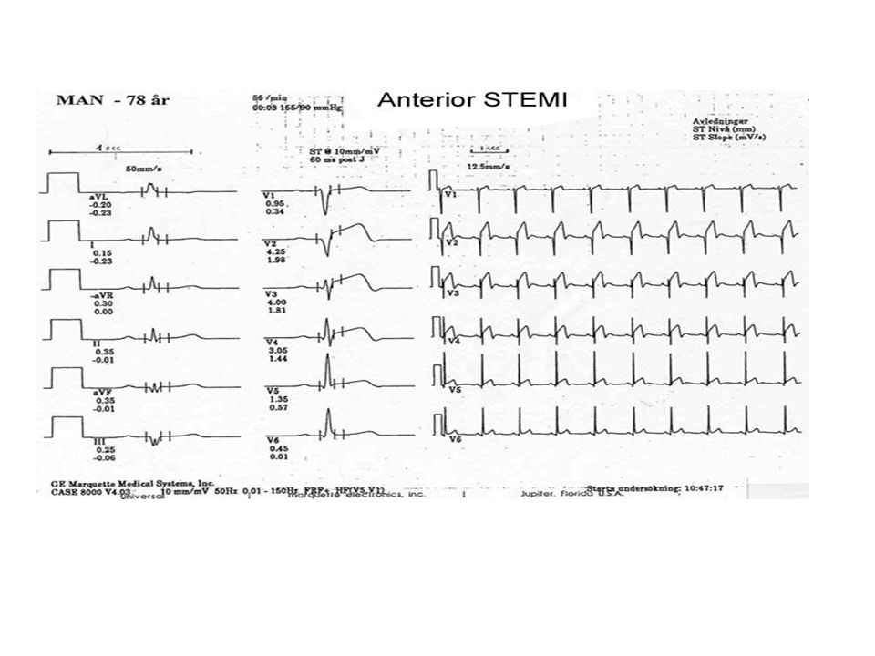 Inferior STEMI