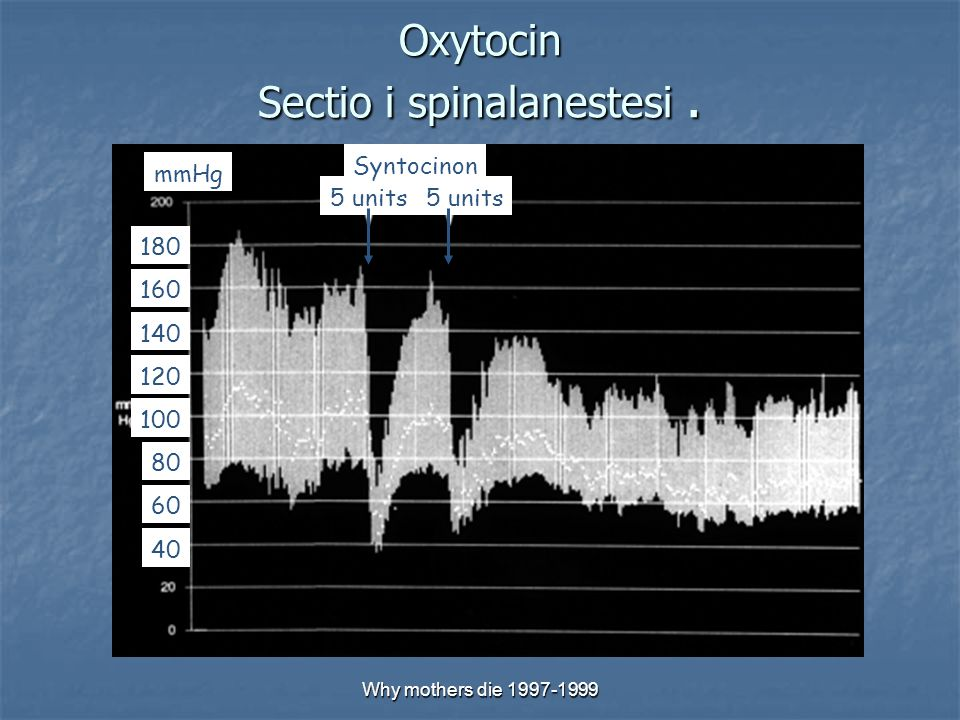 Why mothers die 1997-1999 Oxytocin Sectio i spinalanestesi. 80 120 100 60 140 180 160 40 5 units Syntocinon mmHg