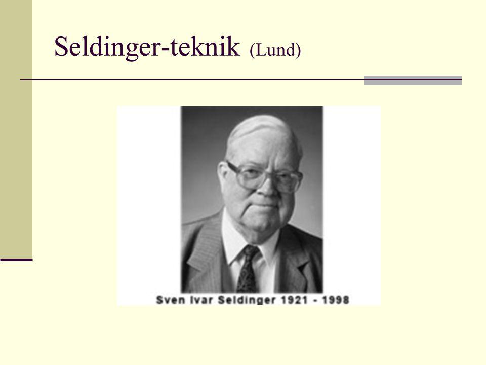 Seldinger-teknik (Lund)