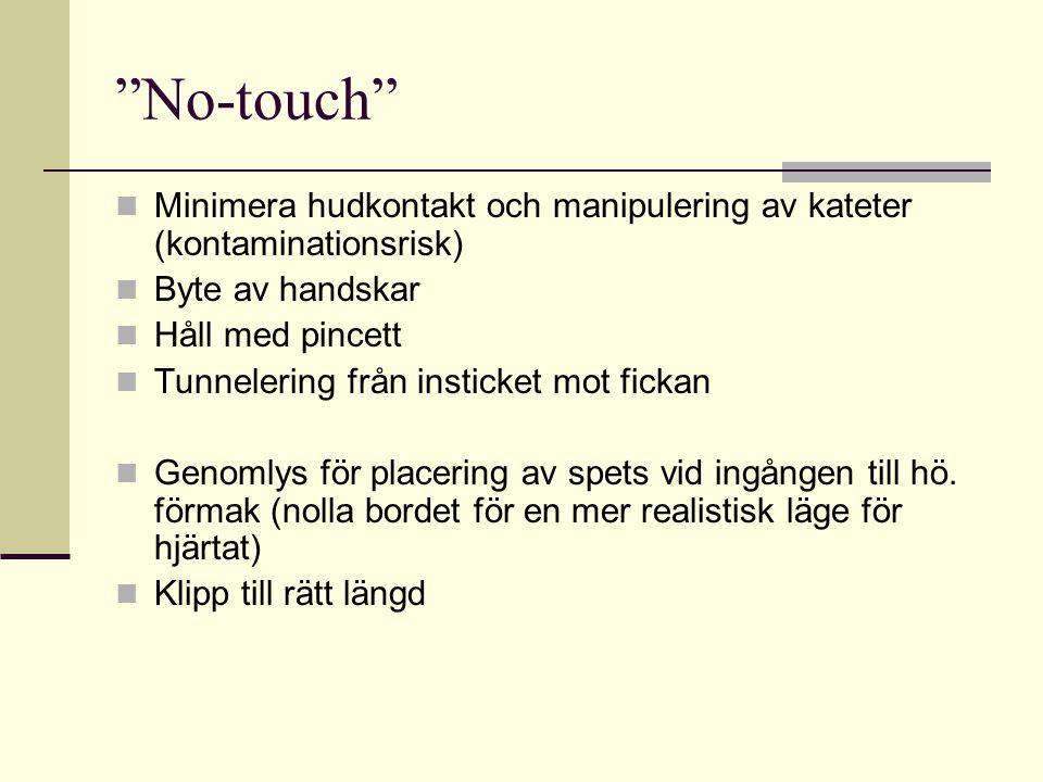 """""""No-touch"""" Minimera hudkontakt och manipulering av kateter (kontaminationsrisk) Byte av handskar Håll med pincett Tunnelering från insticket mot ficka"""