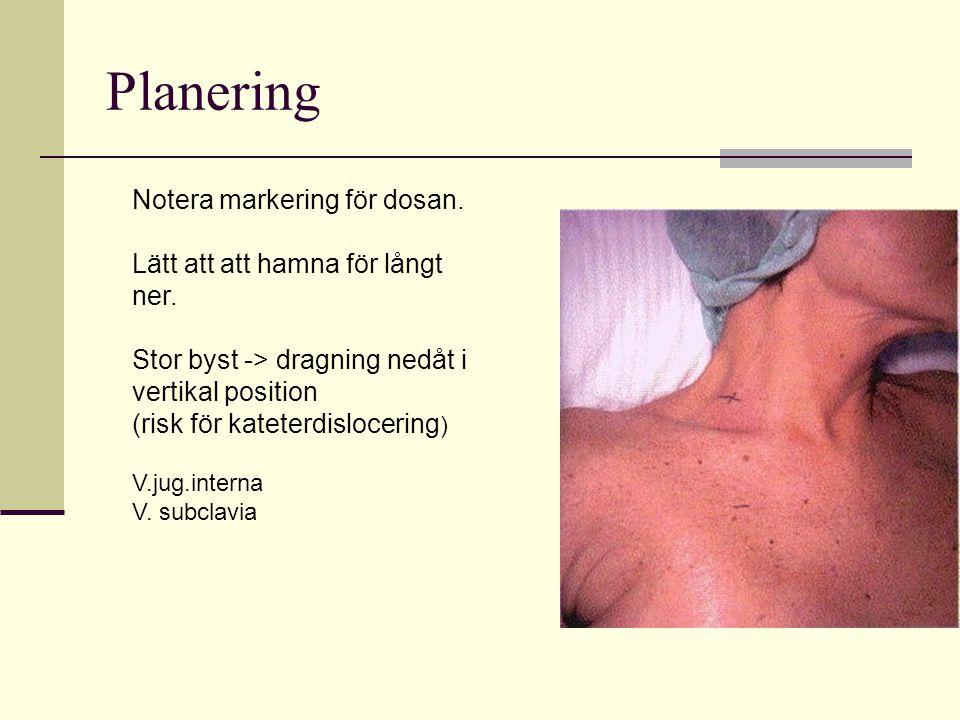 Planering Notera markering för dosan. Lätt att att hamna för långt ner. Stor byst -> dragning nedåt i vertikal position (risk för kateterdislocering )