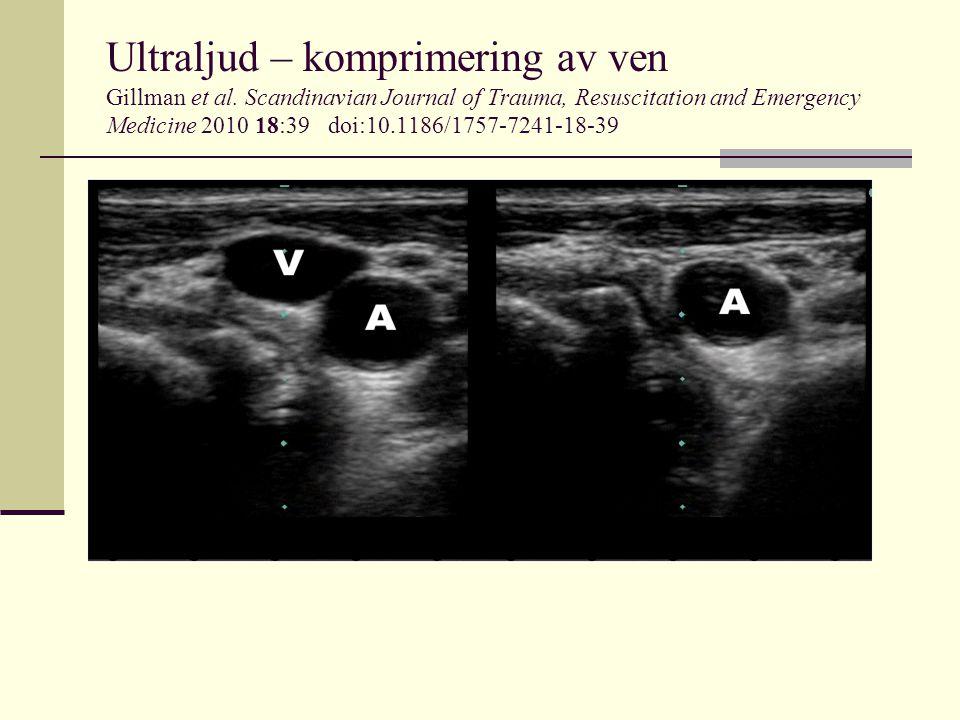 Ultraljud – komprimering av ven Gillman et al. Scandinavian Journal of Trauma, Resuscitation and Emergency Medicine 2010 18:39 doi:10.1186/1757-7241-1