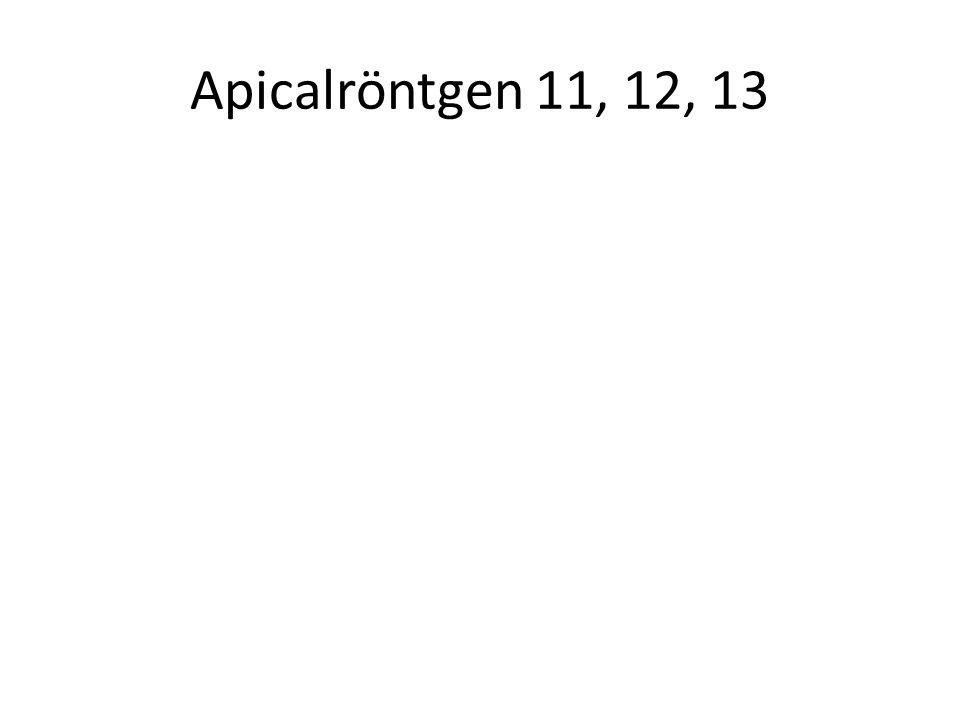 Apicalröntgen 11, 12, 13