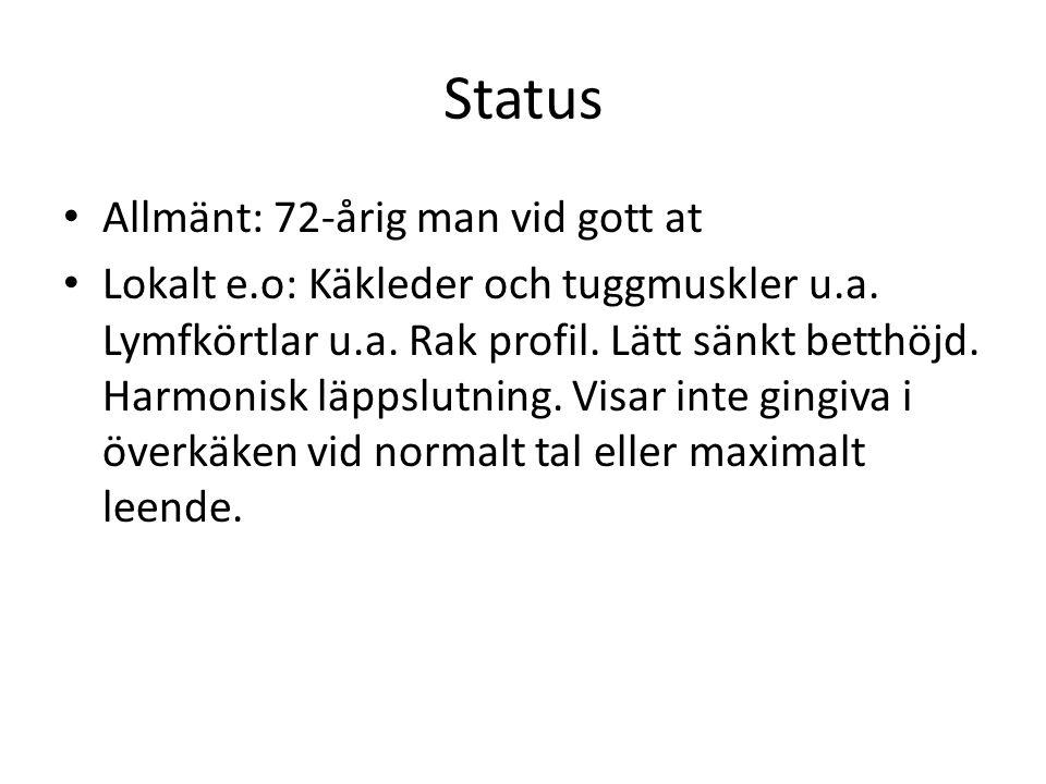 Status Allmänt: 72-årig man vid gott at Lokalt e.o: Käkleder och tuggmuskler u.a. Lymfkörtlar u.a. Rak profil. Lätt sänkt betthöjd. Harmonisk läppslut