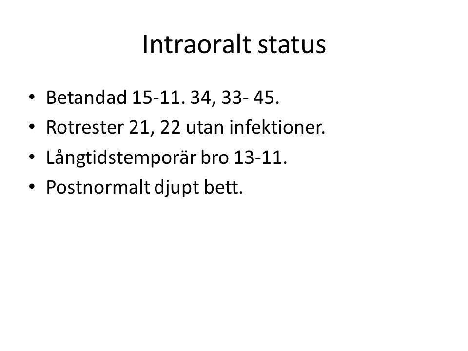 Intraoralt status Betandad 15-11. 34, 33- 45. Rotrester 21, 22 utan infektioner. Långtidstemporär bro 13-11. Postnormalt djupt bett.
