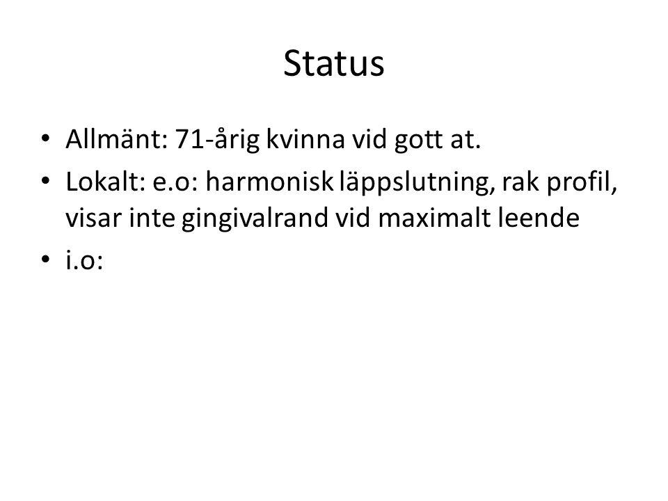 Status Allmänt: 71-årig kvinna vid gott at. Lokalt: e.o: harmonisk läppslutning, rak profil, visar inte gingivalrand vid maximalt leende i.o: