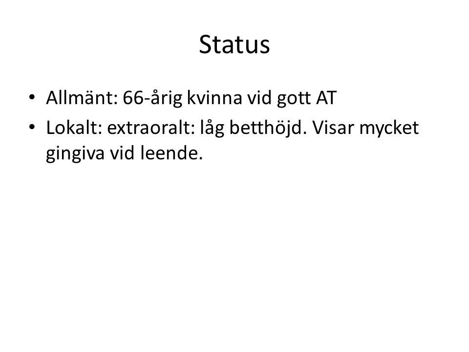 Status Allmänt: 66-årig kvinna vid gott AT Lokalt: extraoralt: låg betthöjd. Visar mycket gingiva vid leende.