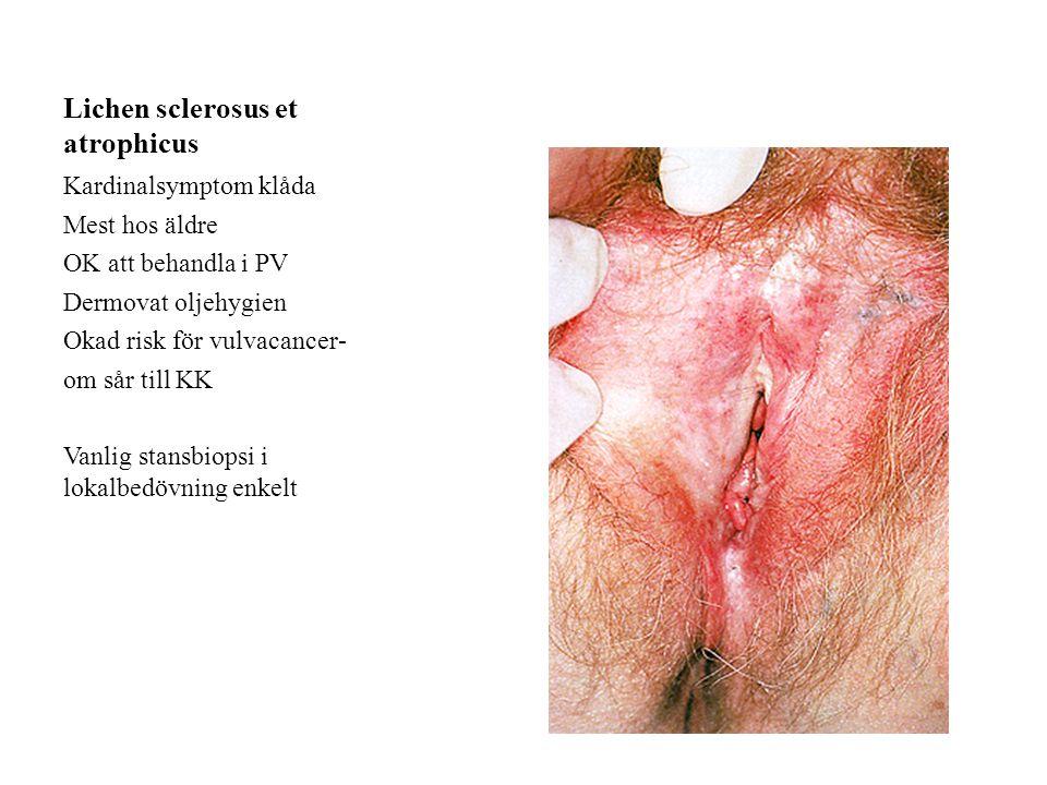 Lichen sclerosus et atrophicus Kardinalsymptom klåda Mest hos äldre OK att behandla i PV Dermovat oljehygien Okad risk för vulvacancer- om sår till KK