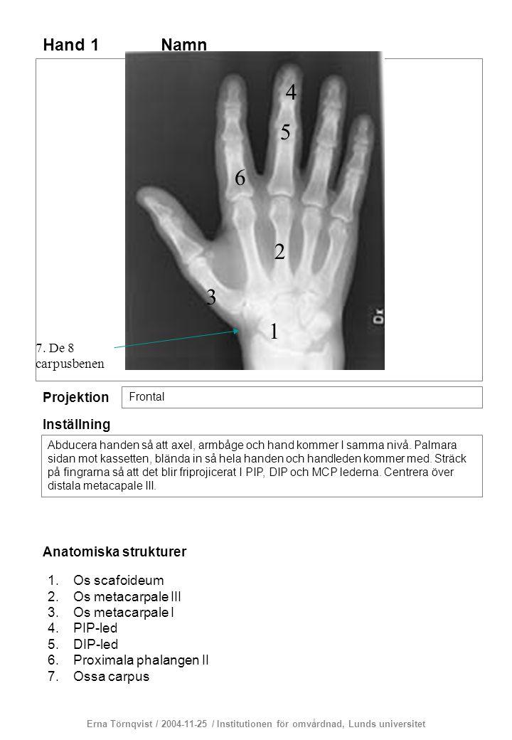 Hand 1 Projektion Frontal Inställning Abducera handen så att axel, armbåge och hand kommer I samma nivå. Palmara sidan mot kassetten, blända in så hel