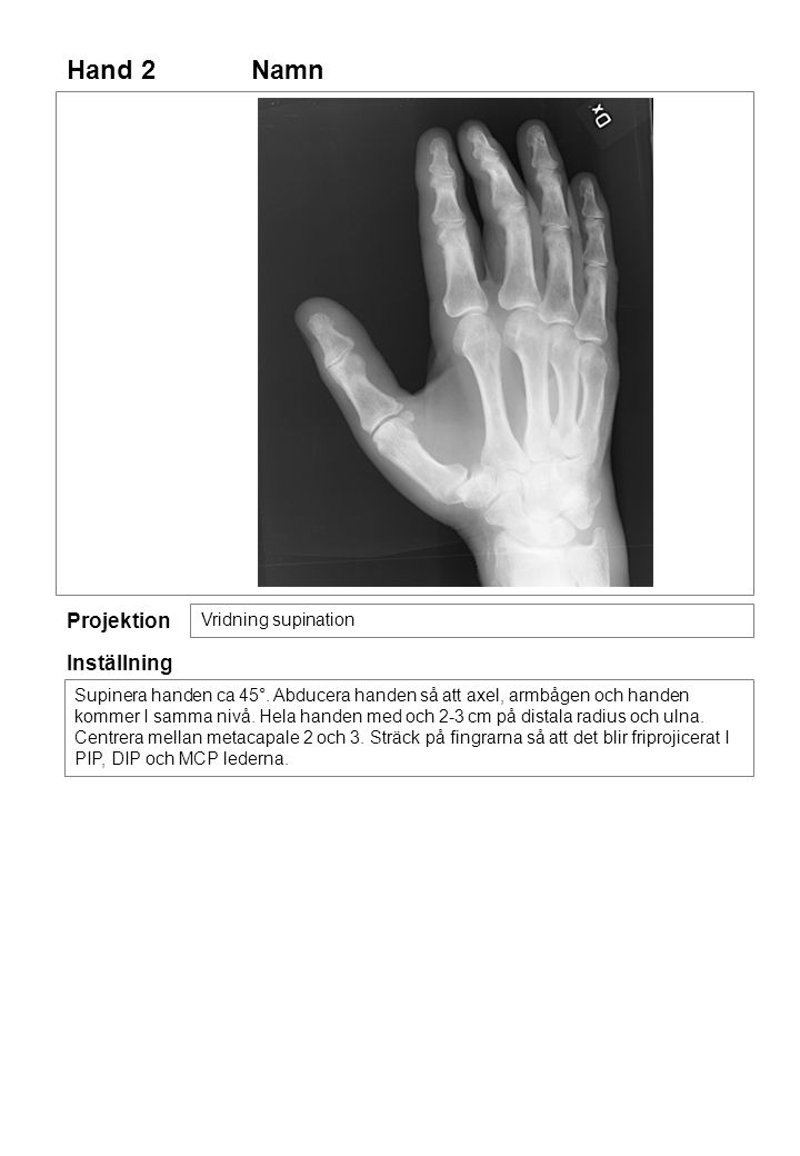 Hand 2 Projektion Vridning supination Inställning Supinera handen ca 45°. Abducera handen så att axel, armbågen och handen kommer I samma nivå. Hela h
