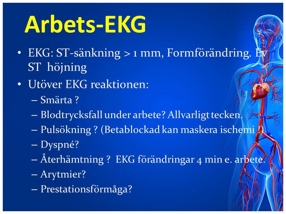 Arbets-EKG EKG: ST-sänkning > 1 mm, Formförändring. Ev ST höjning Utöver EKG reaktionen: – Smärta ? – Blodtrycksfall under arbete? Allvarligt tecken.
