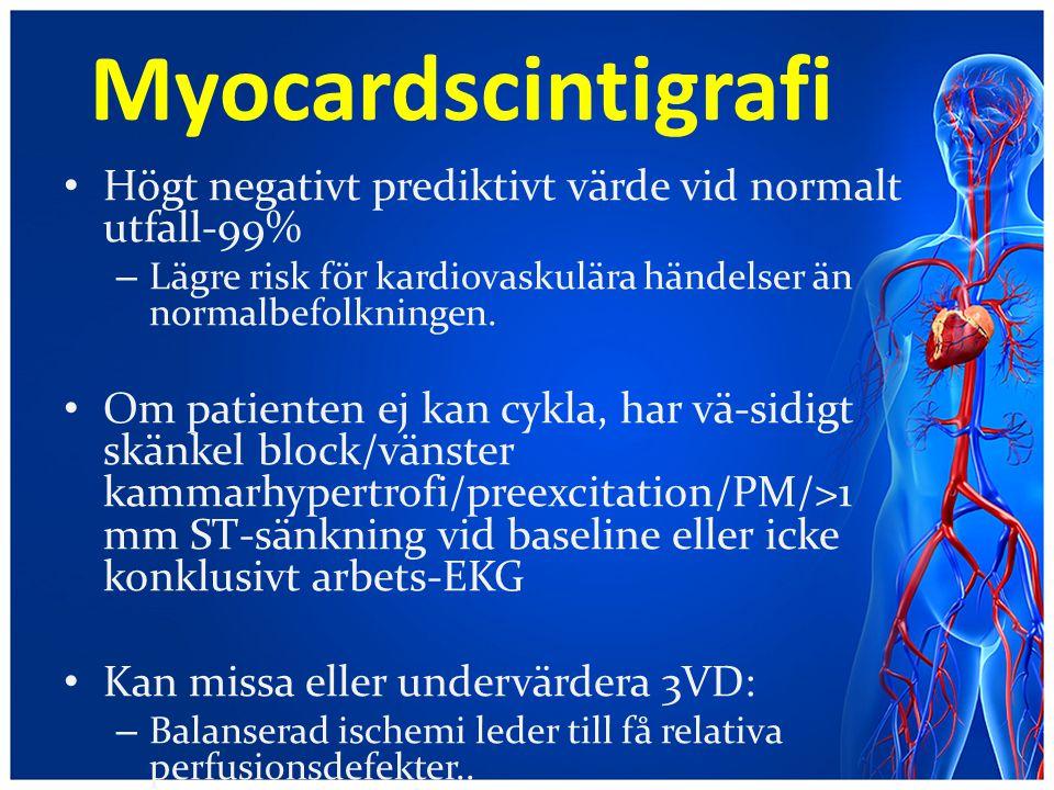 Myocardscintigrafi Högt negativt prediktivt värde vid normalt utfall-99% – Lägre risk för kardiovaskulära händelser än normalbefolkningen. Om patiente