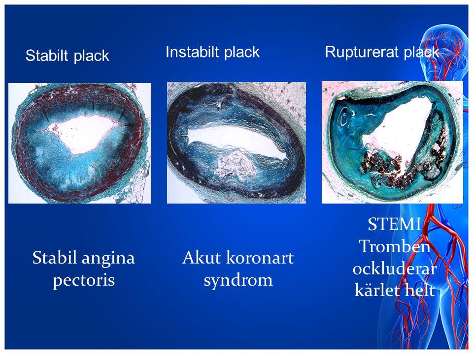 Stabilt plack Instabilt plackRupturerat plack Akut koronart syndrom Stabil angina pectoris STEMI Tromben ockluderar kärlet helt