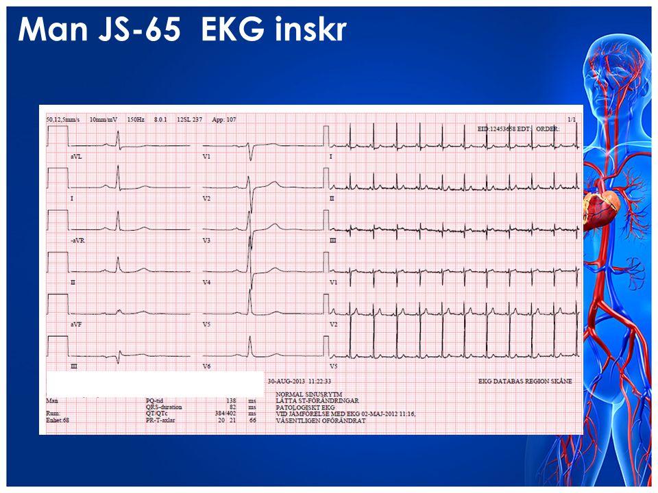 Man JS-65 EKG inskr