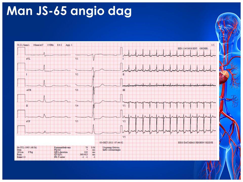 Man JS-65 angio dag