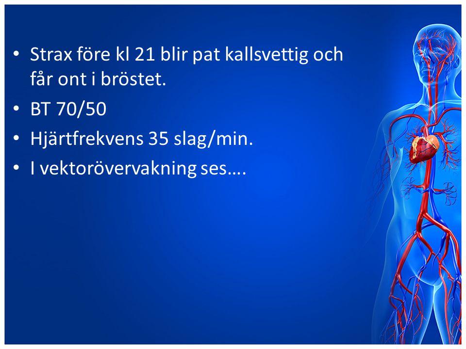Strax före kl 21 blir pat kallsvettig och får ont i bröstet. BT 70/50 Hjärtfrekvens 35 slag/min. I vektorövervakning ses….