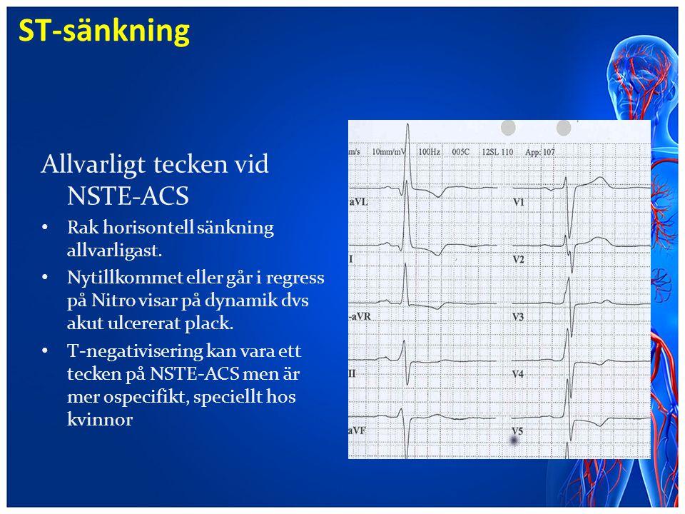 ST-sänkning Allvarligt tecken vid NSTE-ACS Rak horisontell sänkning allvarligast. Nytillkommet eller går i regress på Nitro visar på dynamik dvs akut