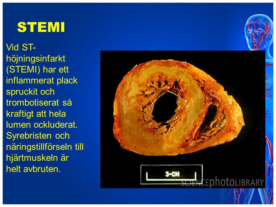 STEMI Vid ST- höjningsinfarkt (STEMI) har ett inflammerat plack spruckit och trombotiserat så kraftigt att hela lumen ockluderat. Syrebristen och näri