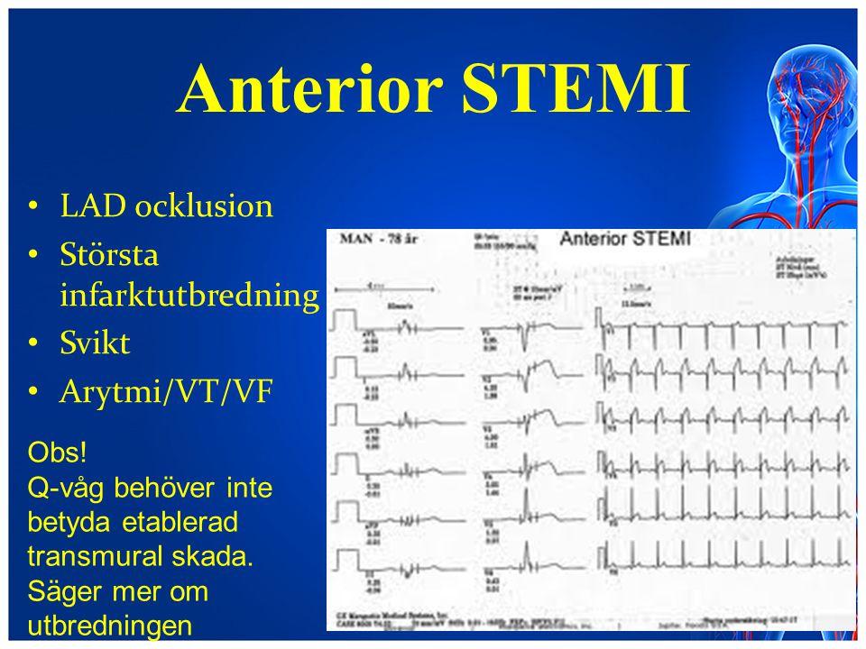 Anterior STEMI LAD ocklusion Största infarktutbredning Svikt Arytmi/VT/VF Obs! Q-våg behöver inte betyda etablerad transmural skada. Säger mer om utbr