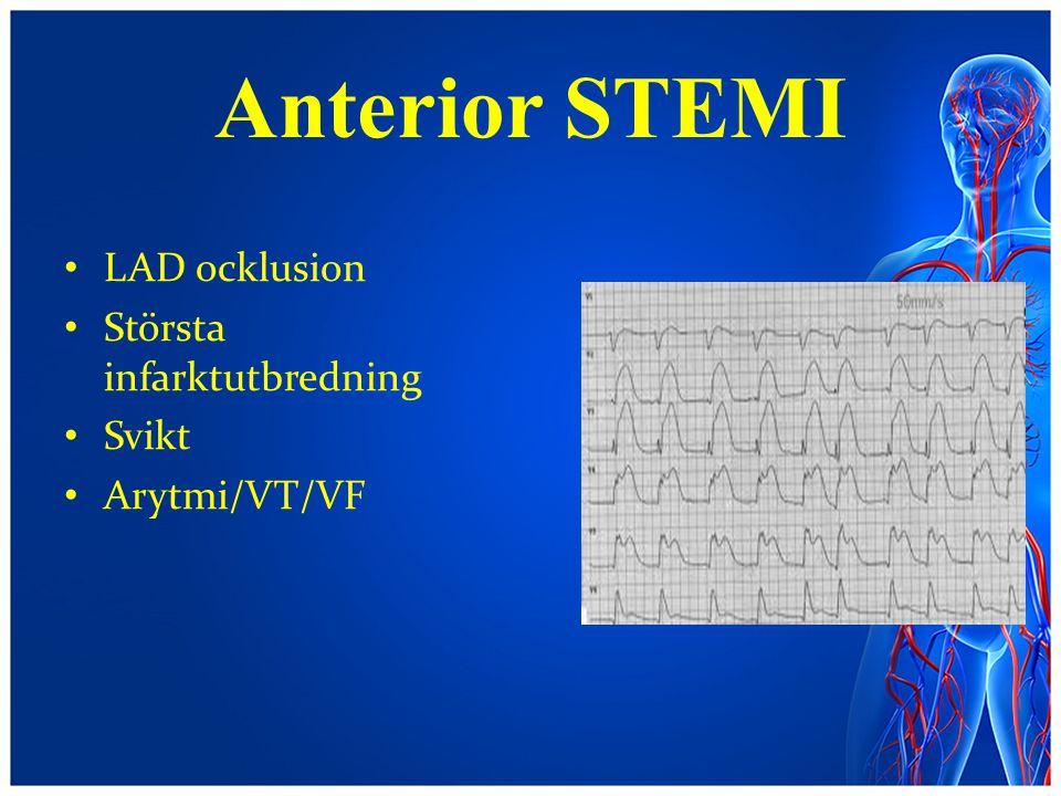 Anterior STEMI LAD ocklusion Största infarktutbredning Svikt Arytmi/VT/VF