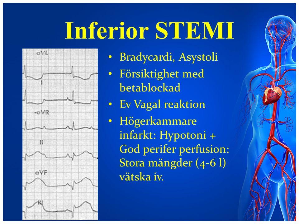 Inferior STEMI Bradycardi, Asystoli Försiktighet med betablockad Ev Vagal reaktion Högerkammare infarkt: Hypotoni + God perifer perfusion: Stora mängd