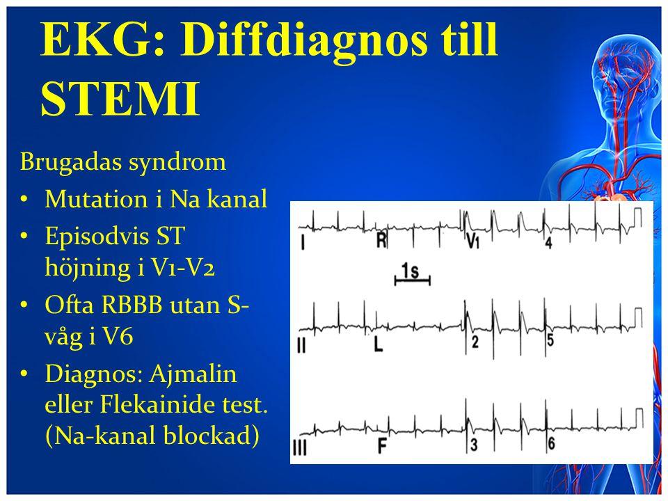 EKG: Diffdiagnos till STEMI Brugadas syndrom Mutation i Na kanal Episodvis ST höjning i V1-V2 Ofta RBBB utan S- våg i V6 Diagnos: Ajmalin eller Flekai