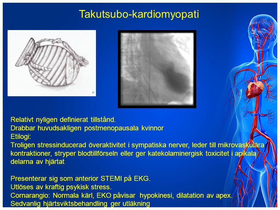 Takutsubo-kardiomyopati Relativt nyligen definierat tillstånd. Drabbar huvudsakligen postmenopausala kvinnor Etilogi: Troligen stressinducerad överakt