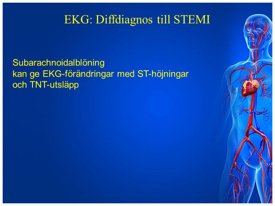 EKG: Diffdiagnos till STEMI Subarachnoidalblöning kan ge EKG-förändringar med ST-höjningar och TNT-utsläpp