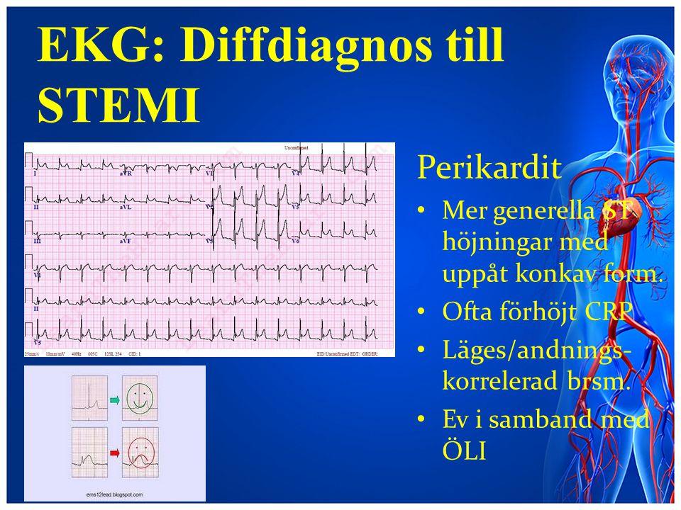 EKG: Diffdiagnos till STEMI Perikardit Mer generella ST höjningar med uppåt konkav form. Ofta förhöjt CRP Läges/andnings- korrelerad brsm. Ev i samban