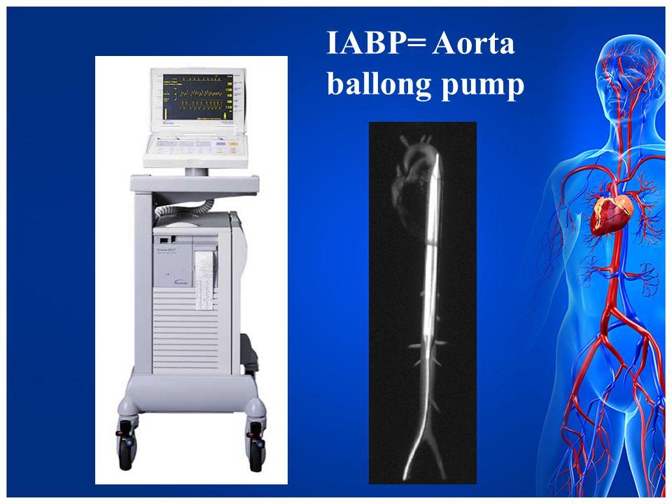 IABP= Aorta ballong pump
