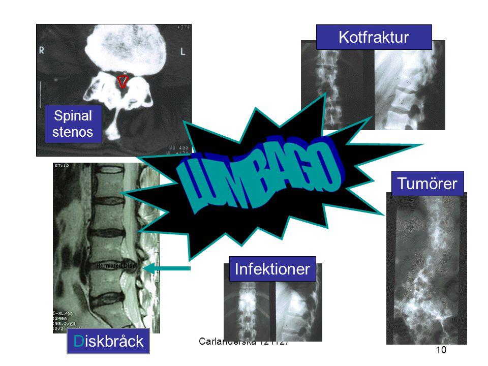 Carlanderska 121127 10 Spinal stenos KotfrakturInfektionerTumörer Diskbråck