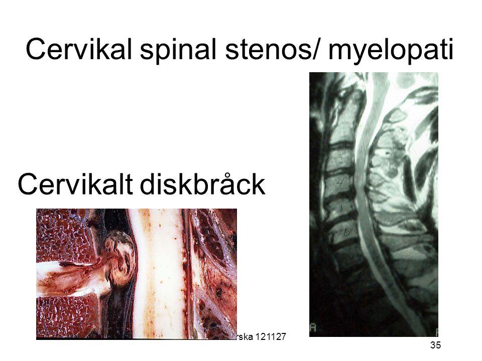Carlanderska 121127 35 Cervikal spinal stenos/ myelopati Cervikalt diskbråck