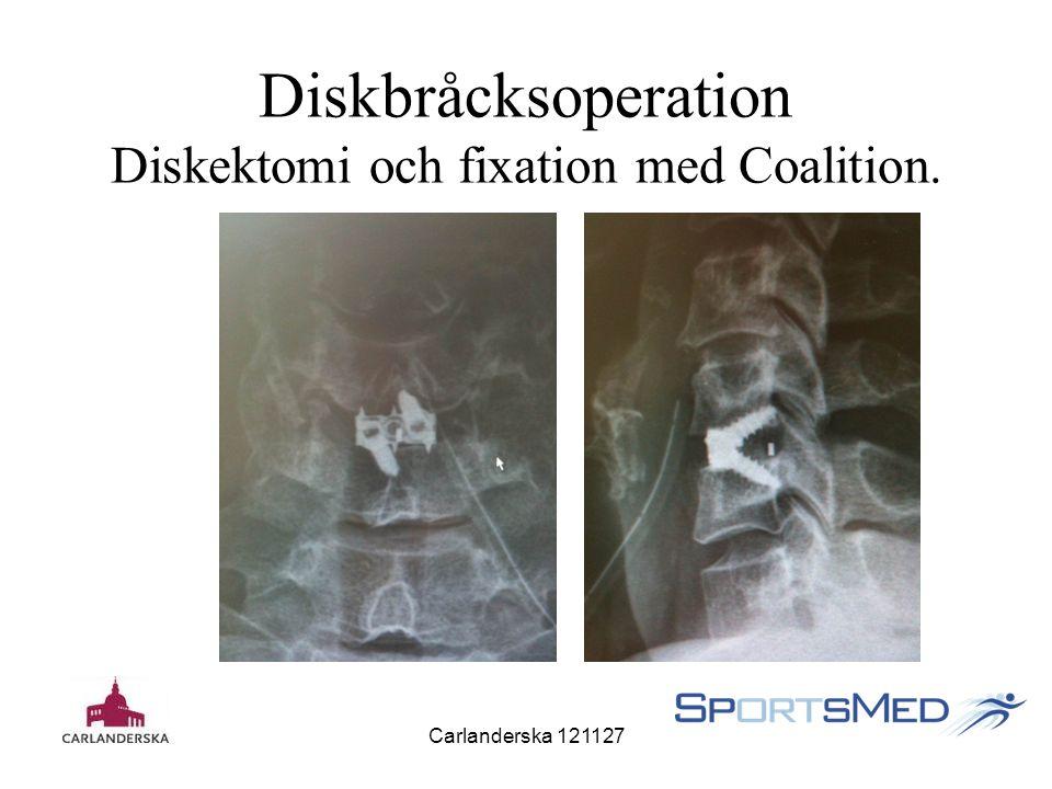 Carlanderska 121127 Diskbråcksoperation Diskektomi och fixation med Coalition.