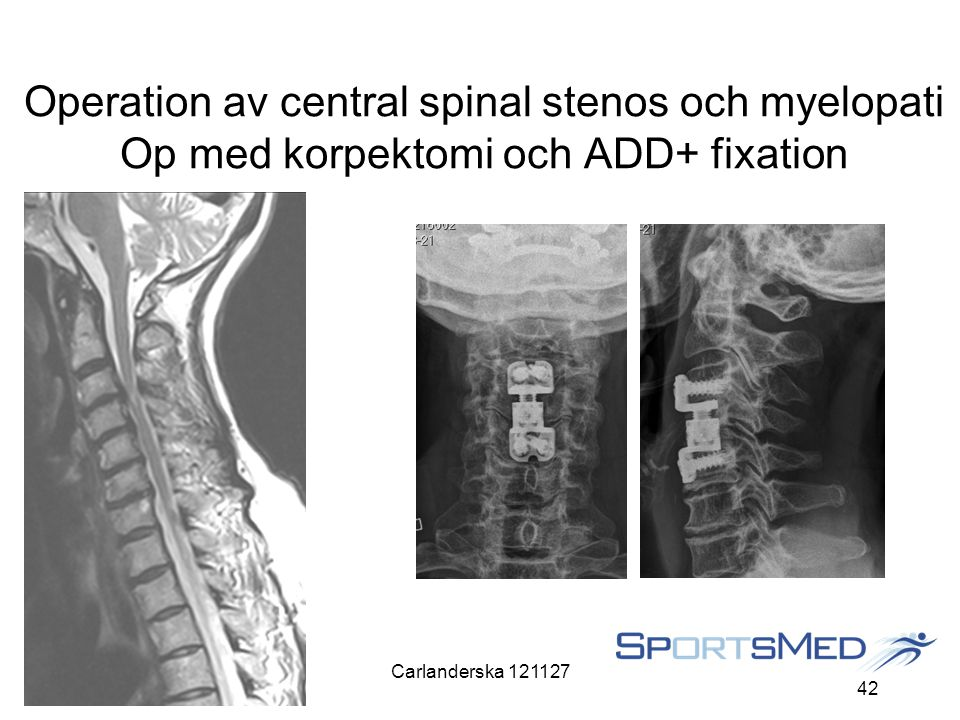 Carlanderska 121127 42 Operation av central spinal stenos och myelopati Op med korpektomi och ADD+ fixation