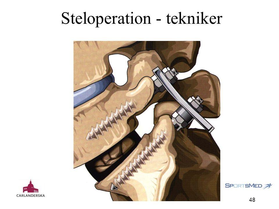 Carlanderska 121127 48 Steloperation - tekniker