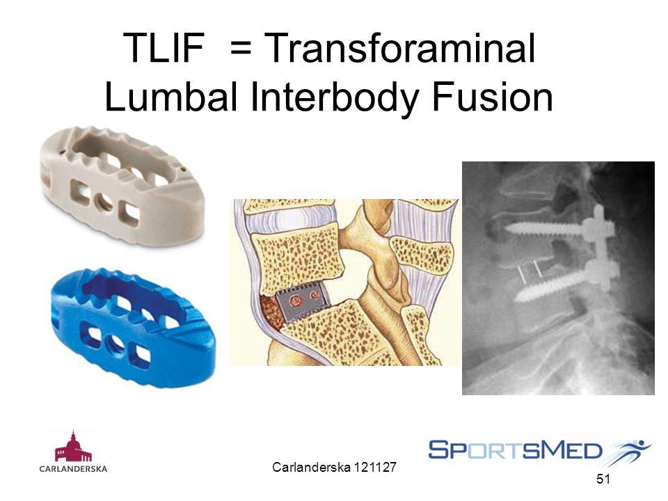 Carlanderska 121127 51 TLIF = Transforaminal Lumbal Interbody Fusion