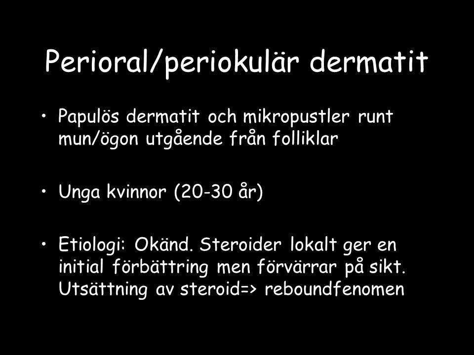 Papulös dermatit och mikropustler runt mun/ögon utgående från folliklar Unga kvinnor (20-30 år) Etiologi: Okänd. Steroider lokalt ger en initial förbä