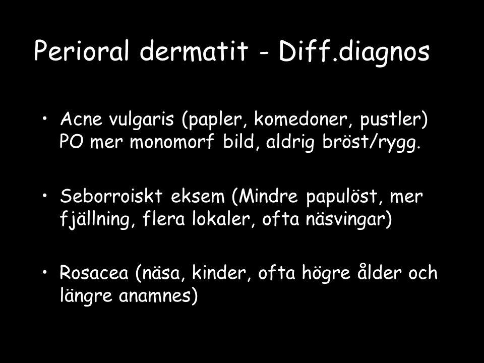 Perioral dermatit - Diff.diagnos Acne vulgaris (papler, komedoner, pustler) PO mer monomorf bild, aldrig bröst/rygg. Seborroiskt eksem (Mindre papulös